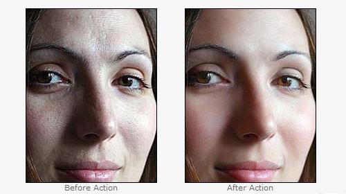 soften skin actions
